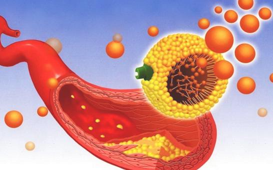 kak-snizit-xolesterin-v-organizme1