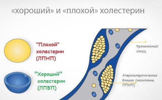 kak-snizit-xolesterin-v-organizme2