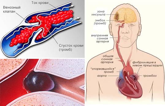 tromby-v-organizme1