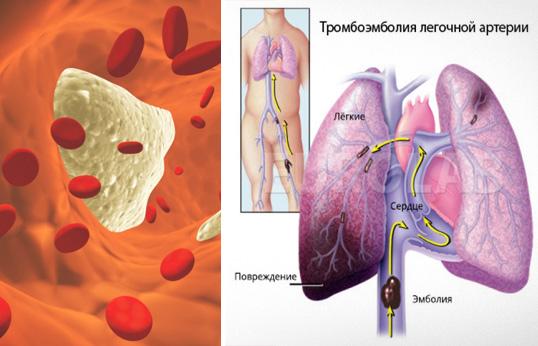 tromby-v-organizme2